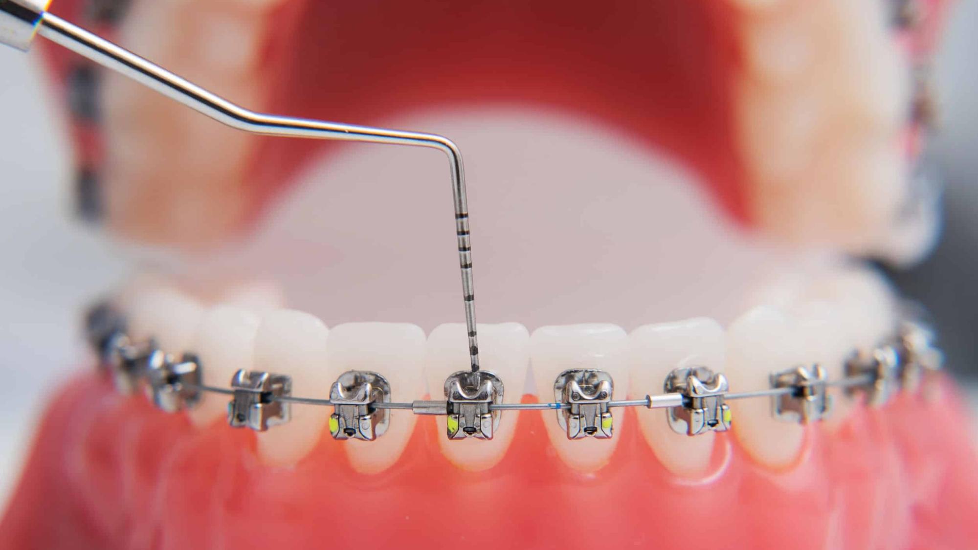 เมื่อตัดสินใจจัดฟัน ต้องเตรียมตัวอย่างไรบ้าง