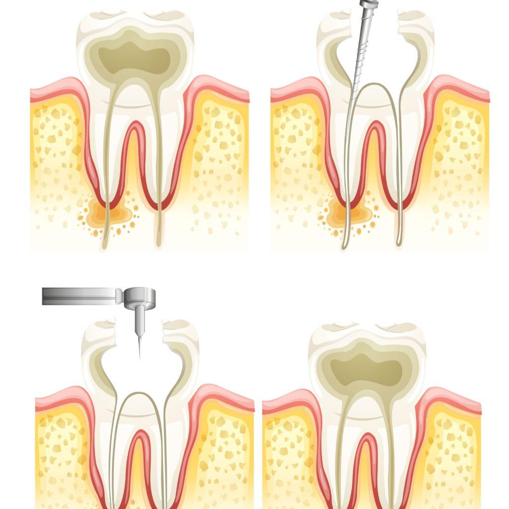 """""""รักษารากฟัน"""" คืออะไร มาทำความเข้าใจก่อนเข้ารับการรักษา"""