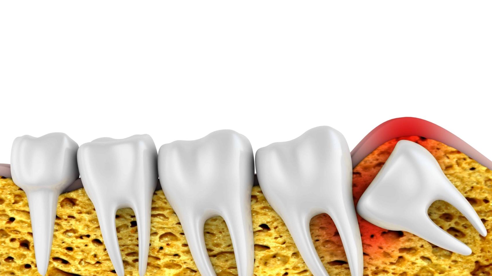 ฟันคุดควรผ่าออกหรือไม่