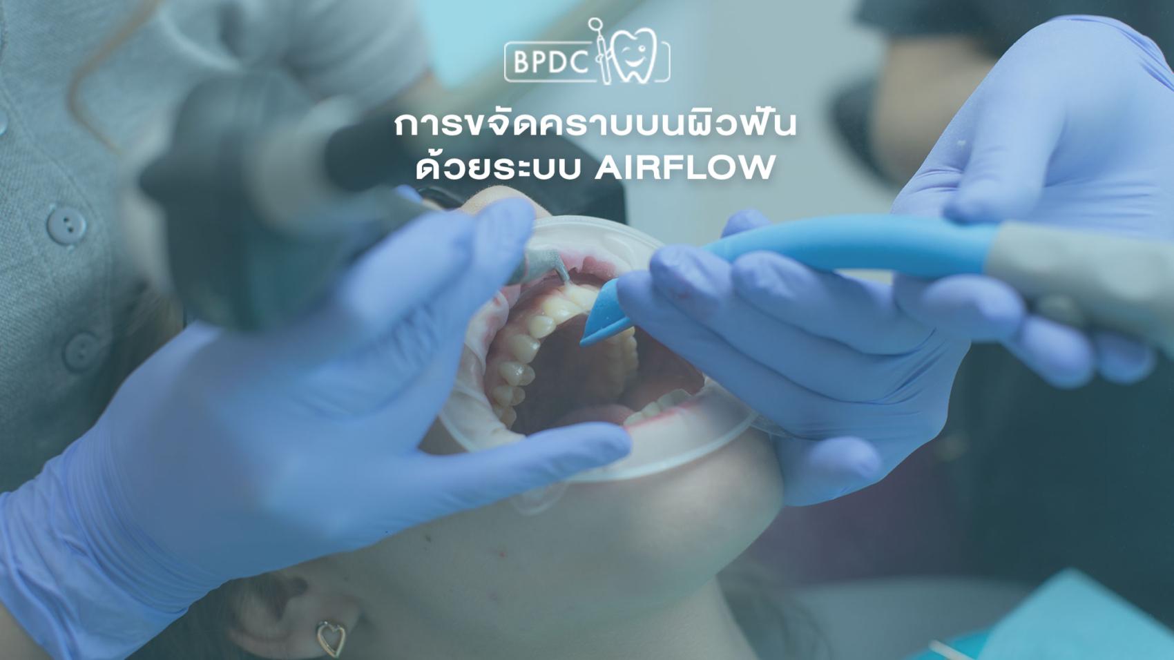 การขจัดคราบบนผิวฟันด้วยระบบ Airflow