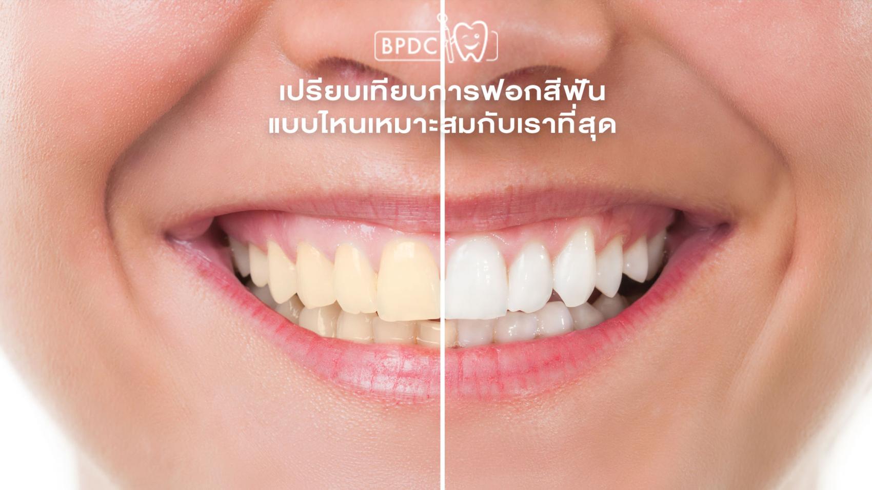 เปรียบเทียบการฟอกสีฟัน แบบไหนเหมาะสมกับเราที่สุด