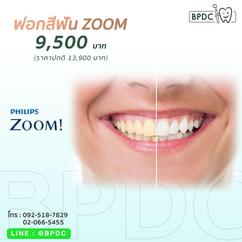 ฟอกสีฟัน Zoom