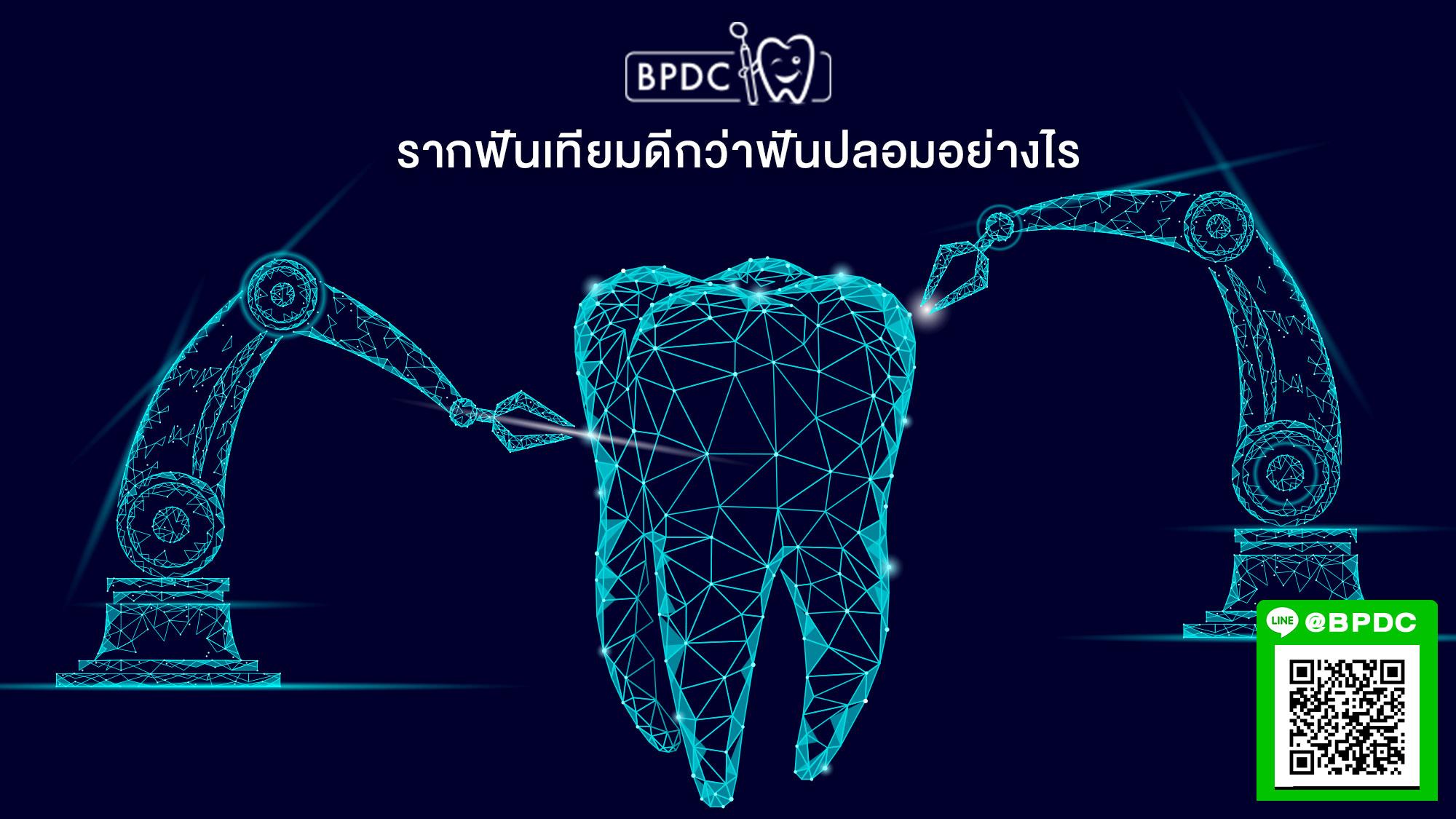 รากฟันเทียมดีกว่าฟันปลอมอย่างไร