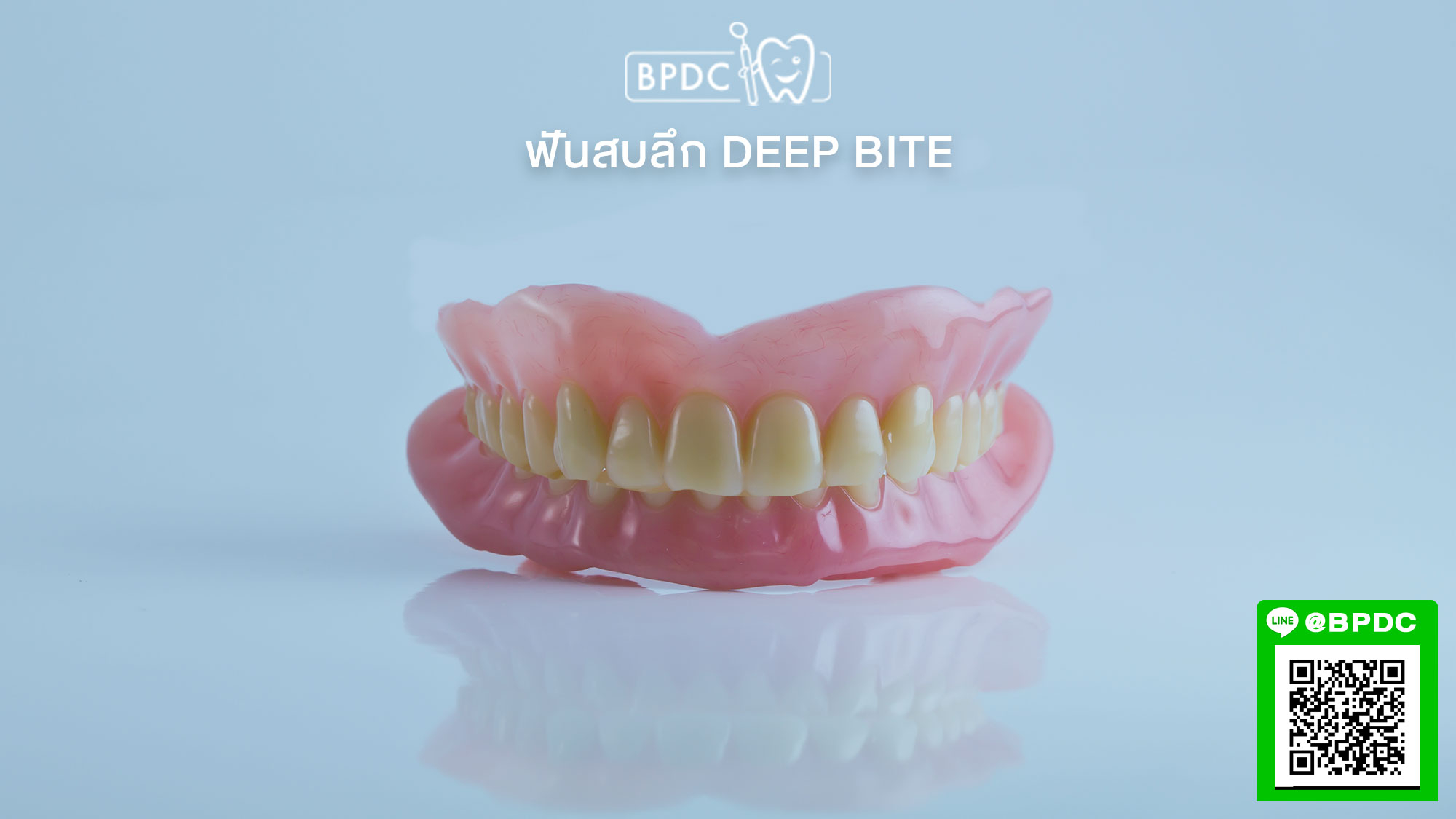 ฟันสบลึก Deep Bite