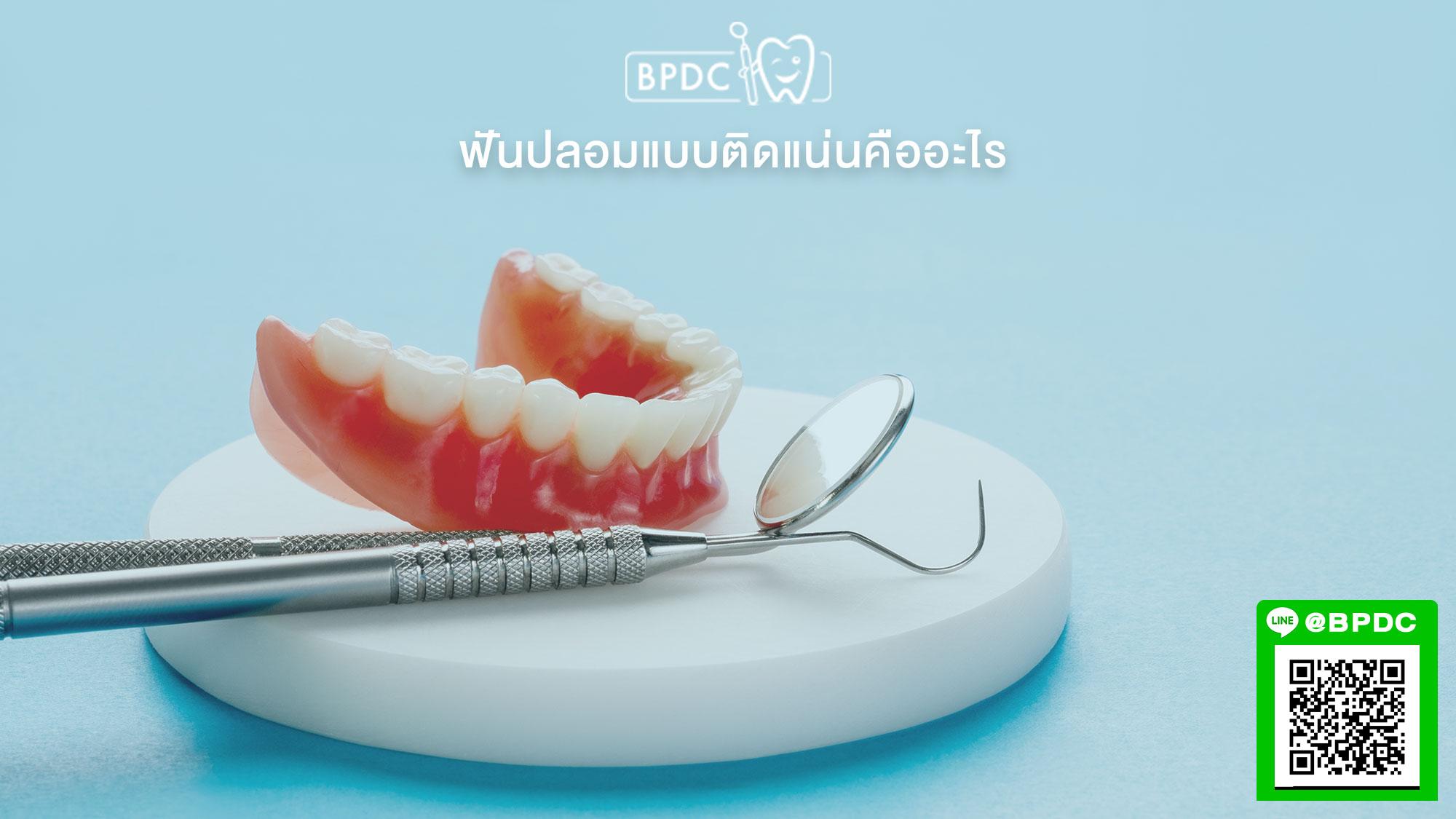 ฟันปลอมแบบติดแน่นคืออะไร