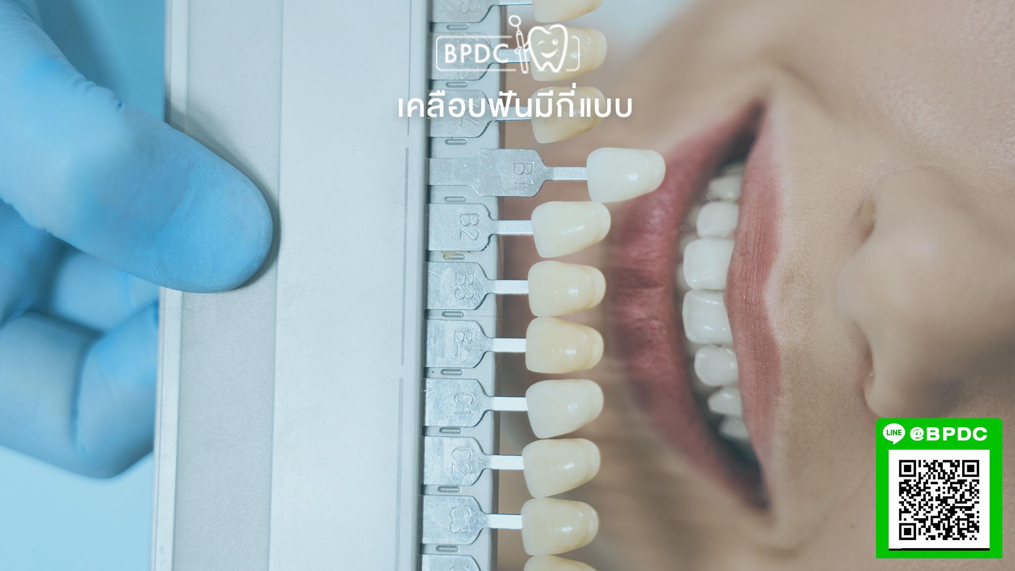เคลือบฟันมีกี่แบบ