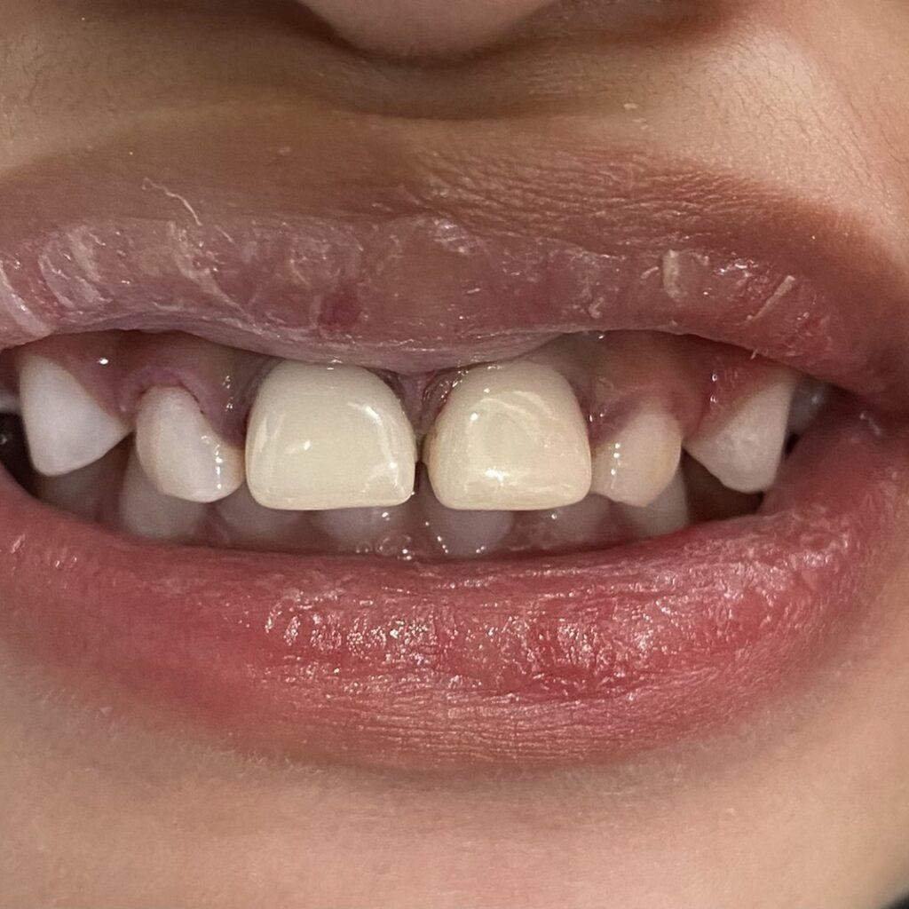 ครอบฟันหน้าเซรามิกสำหรับเด็ก