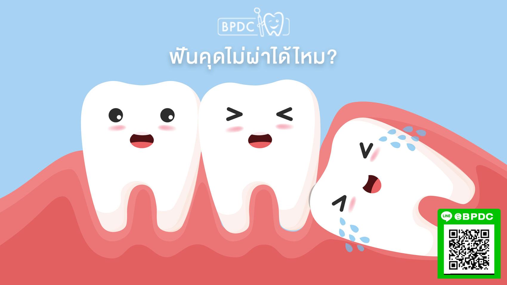 ฟันคุดไม่ผ่าได้ไหม